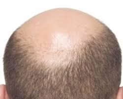 薄毛になる原因を考えてみる